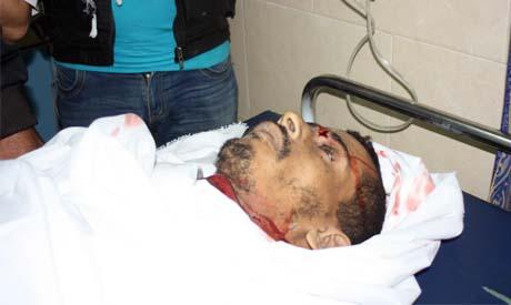Dead man as a result of shrapnel wounds in emergency room, Al-Shifaa hospital, Sunday (Photo: Nada E