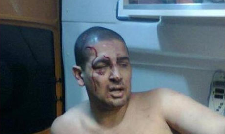 ex mp accuses muslim brotherhood of assaulting him
