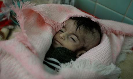 hospital in Sanaa (Reuters)