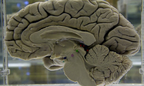 Head injury boosts dementia risk