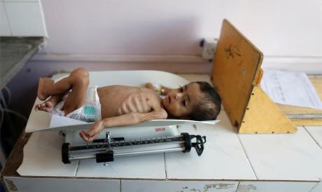 Yemeni child