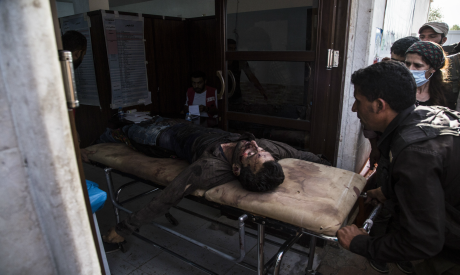 A man wounded in Turksih shelling