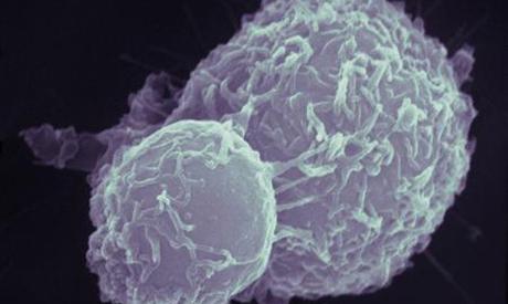 Colon cancer cells ( Reuters)