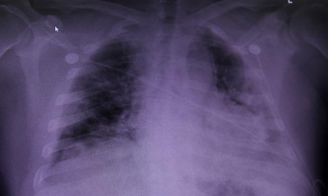 FILE PHOTO: An X-ray of a COVID-19 patient